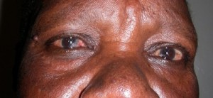 HIV/AIDS - Eye infection during treatment