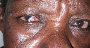 HIV/AIDS - Eye infection before treatment